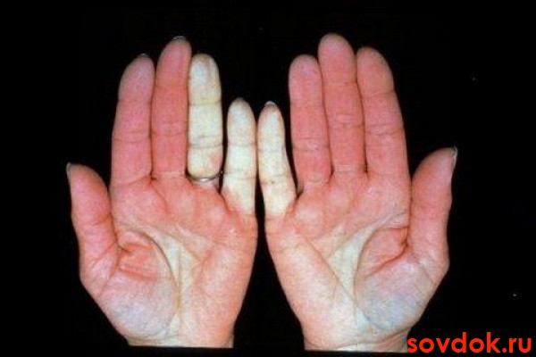 руки-с-синдромом-рейно
