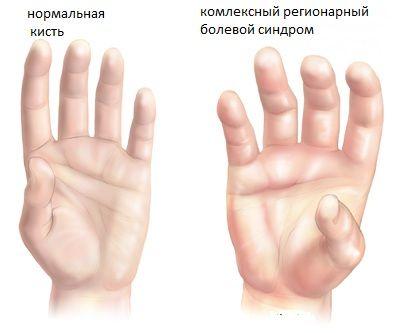 C-UsersСМигачёвDesktopСАЙТ ОРТОСПАЙНклиника болиreflex-sympathetic-dystrophy