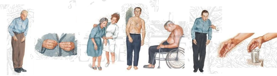 bolezn-parkinsona-simptomi
