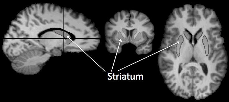 Striatum3